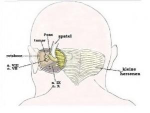neurologisch1.1