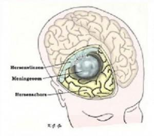 neurologisch2.1